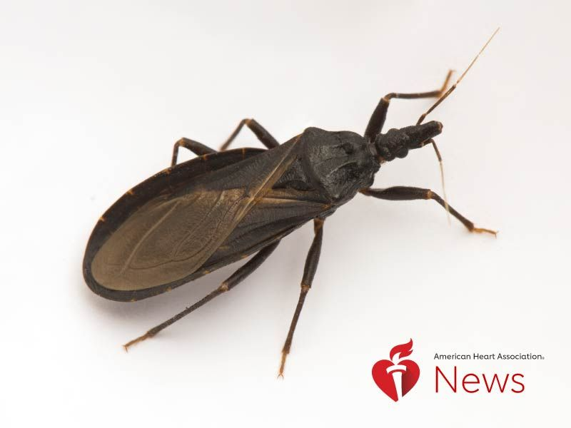 News Picture: AHA News: Should You Be Worried About Blood-Hungry 'Kissing Bugs'?