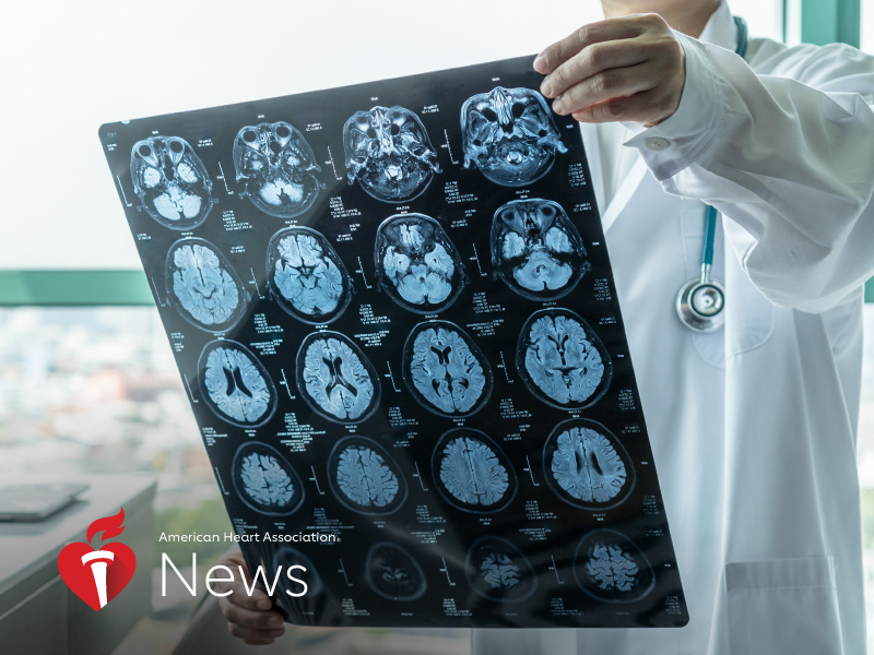 AHA News: Sustained High Blood Pressure May Damage Brain Vessels