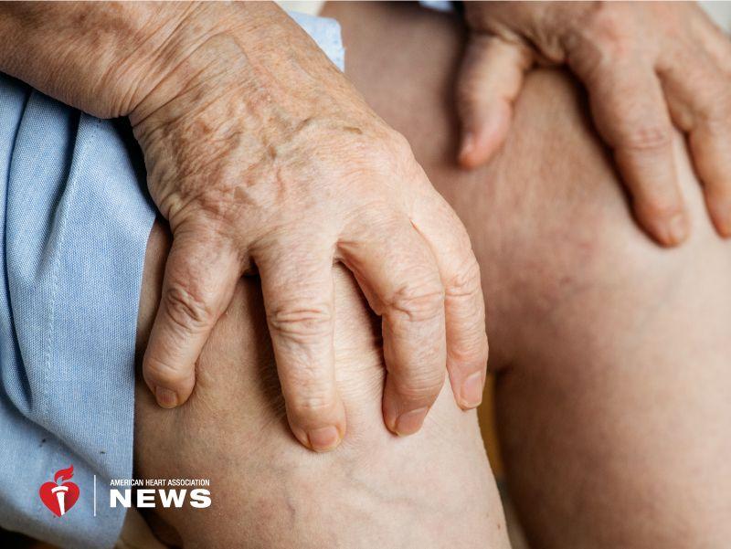AHA: Gout Could Increase Heart Disease Risk