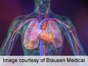 Asthma Linked to Increased Risk of Dangerous Lung Blockage