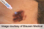 News Picture: Combo Treatment for Advanced Melanoma Seems to Improve Survival