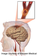 News Picture: Exposure to the Metal Tungsten May Raise Stroke Risk