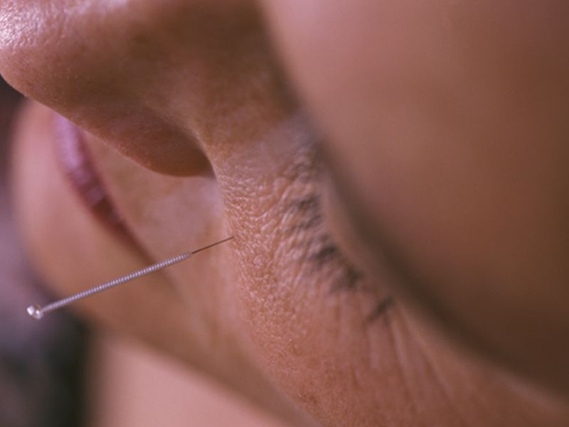 Mixed Results on Acupuncture for Incontinence, Infertility