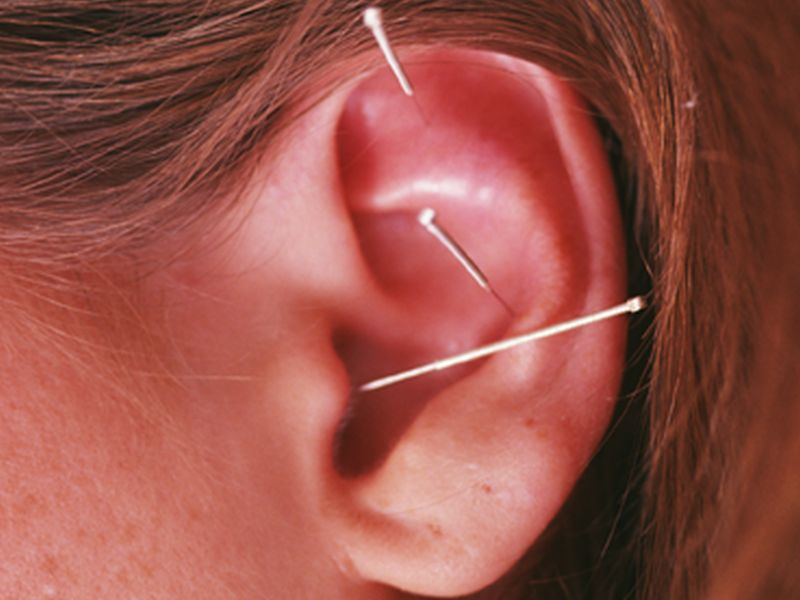 Acupuncture May Ease a Common Side Effect of Cancer Treatment