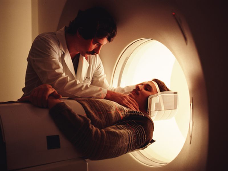 New MRI Test May Predict Severity of MS