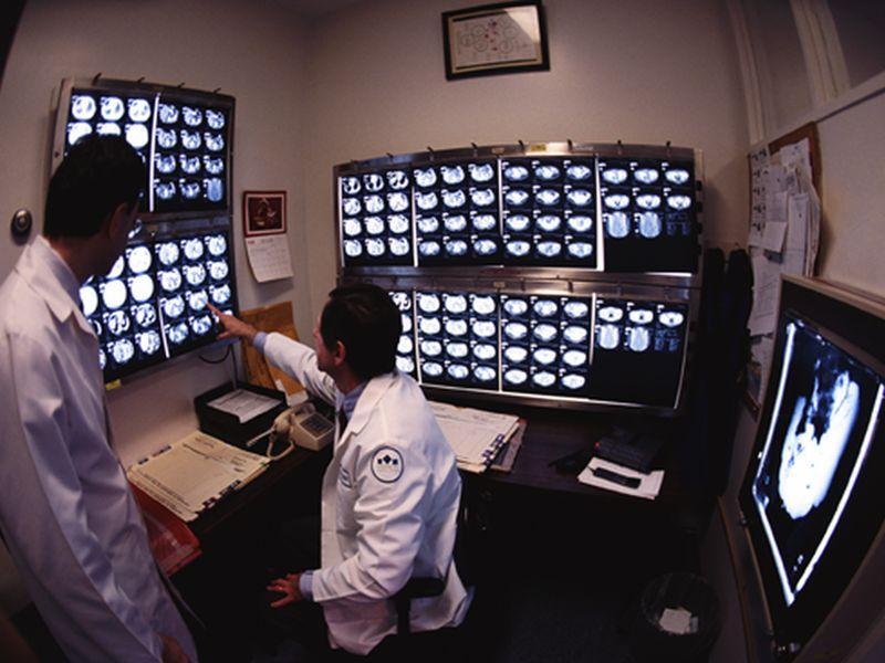 La NRM aide à quantifier l'atteinte nerveuse périphérique dans la SEP