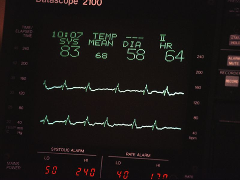 News Picture: High 'Resting' Heart Rate Tied to Higher Odds of Early Death