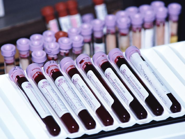 Blood Test Might Predict Worsening MS
