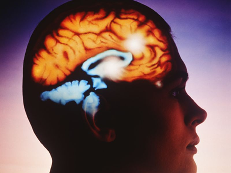 Is Evolution of the Human Brain to Blame for Some Mental Disorders?