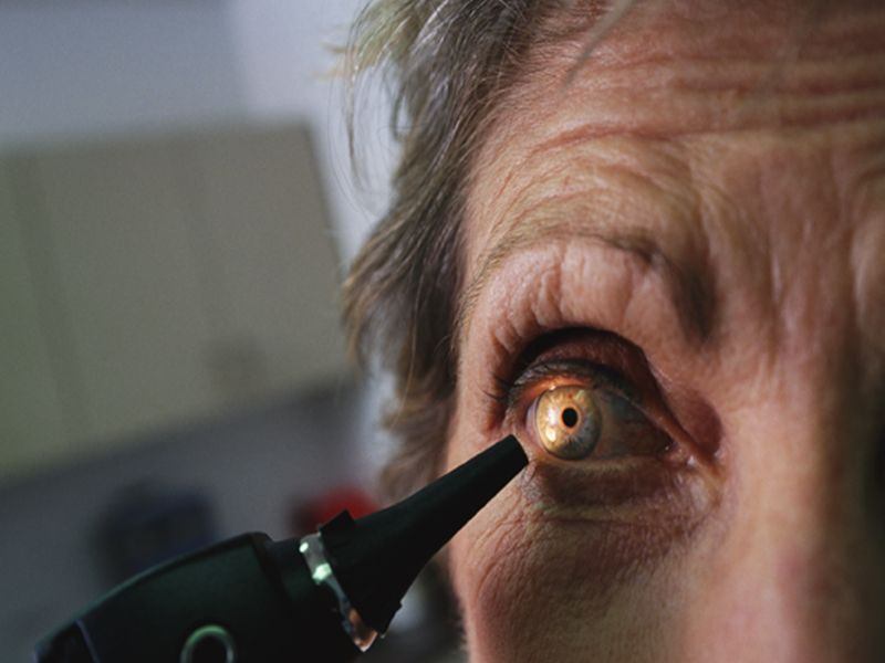 News Picture: Change Within the Eye May Be Early Warning for Macular Degeneration