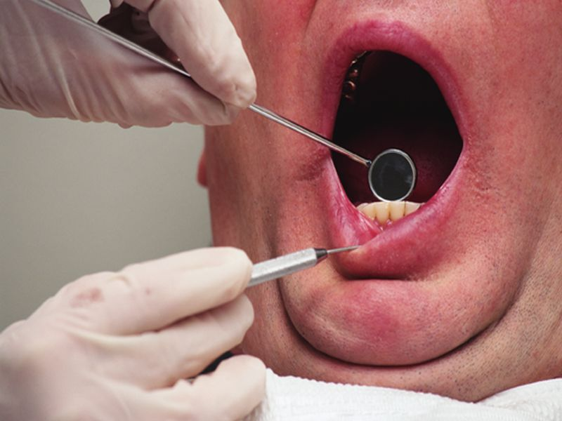 Long-Term Pot Use Tied to Gum Disease in Study