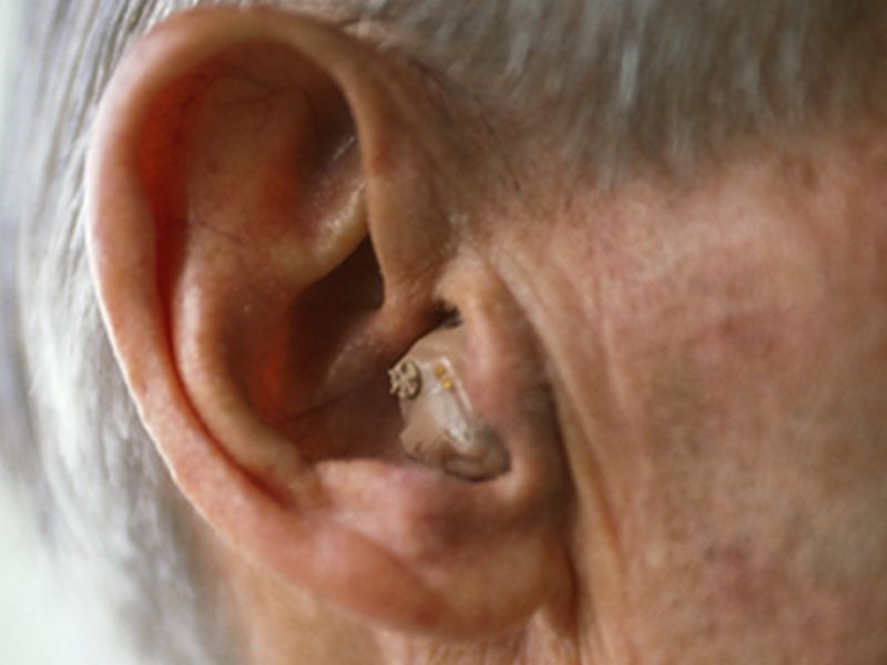 News Picture: Hearing Loss Widespread, 'Progressive' in Older Americans