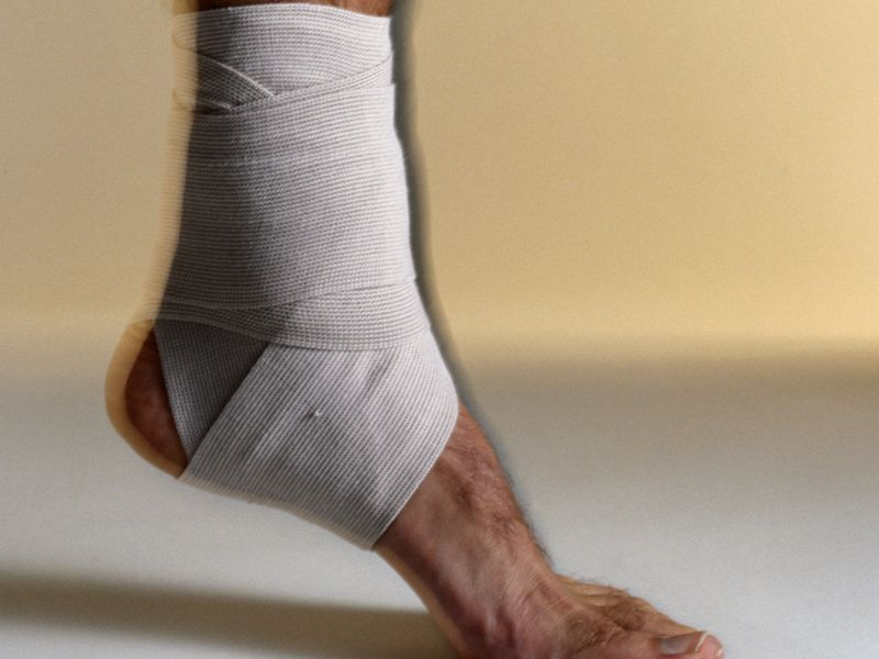 News Picture: Study Casts Doubt on Need for Physical Therapy After Ankle Sprain