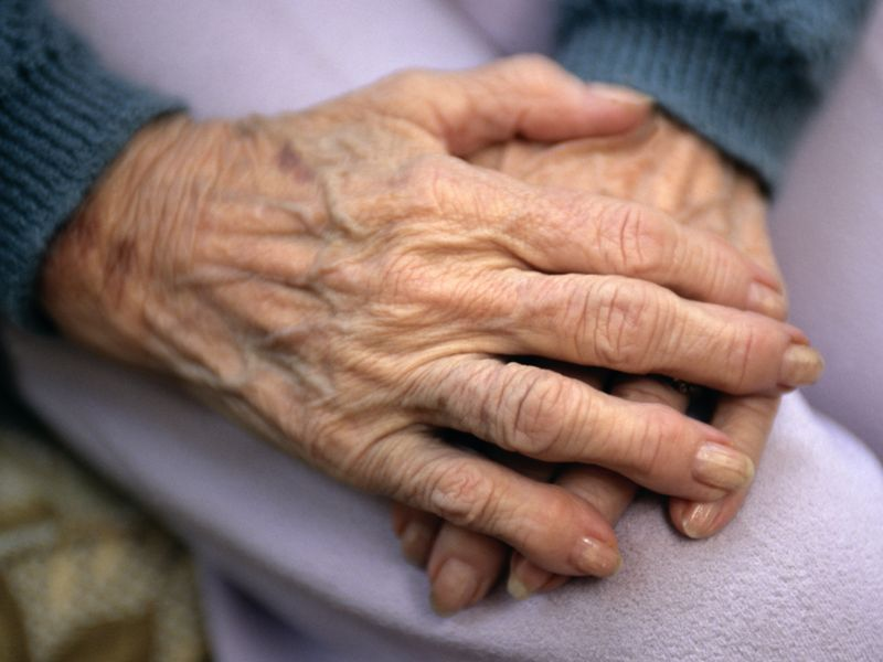 News Picture: 4 in 10 People Will Suffer Arthritic Hands Over Lifetime