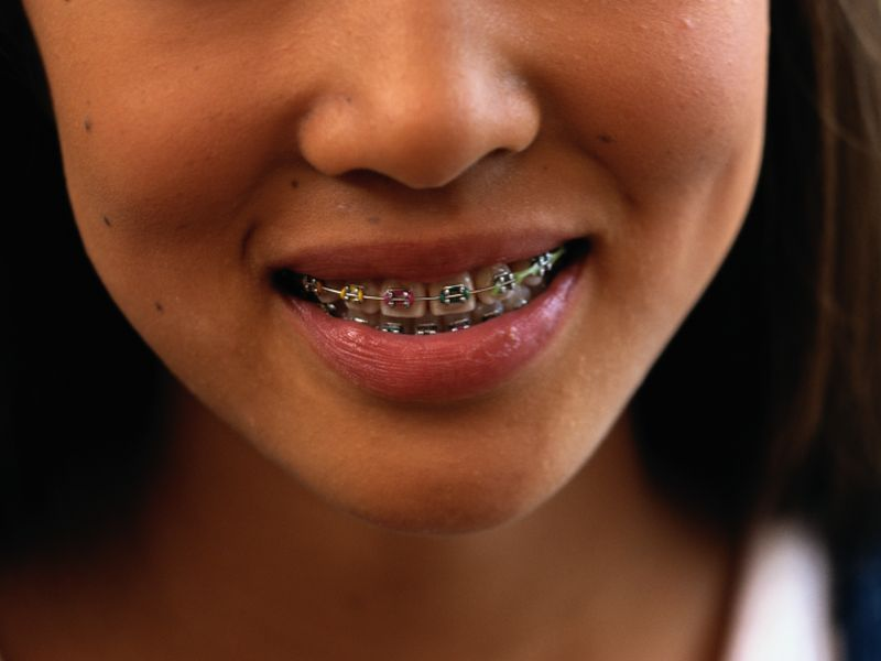 News Picture: Need Braces? Say Goodbye to 'Metal-Mouth' Taunts
