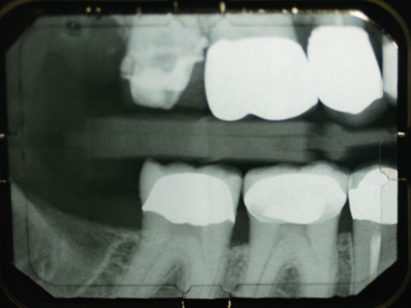 News Picture: Another Downside to Diabetes: Tooth Loss