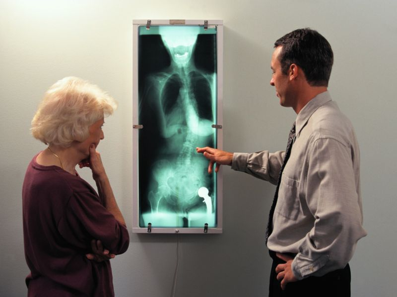 News Picture: X-Rays May Miss Hip Arthritis, Study Finds