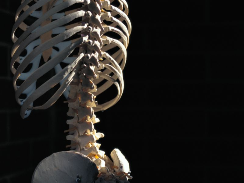 How to Keep Your Bones Strong and Prevent Fractures