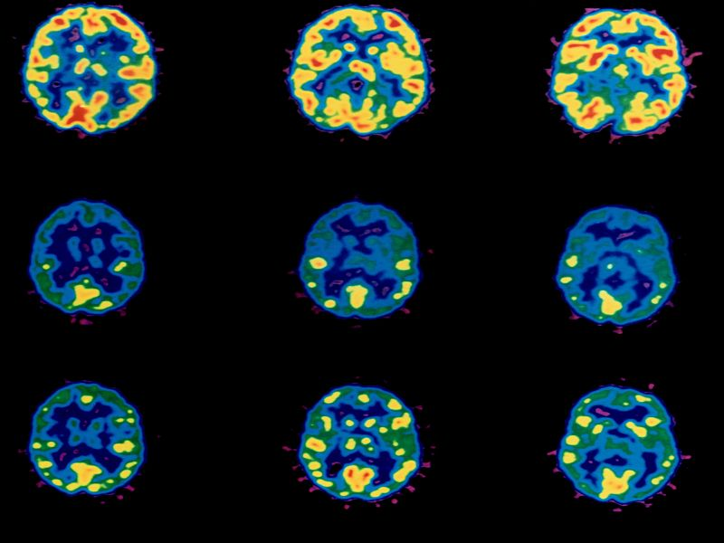 Better Treatments Needed to Boost Brain Cancer Survival: Study