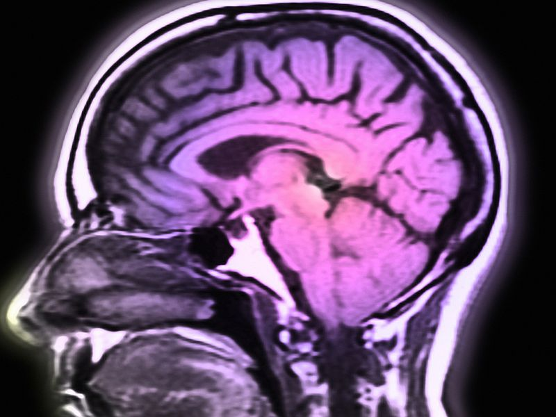 Brain Scans May Reveal Which Coma Patients Will Recover