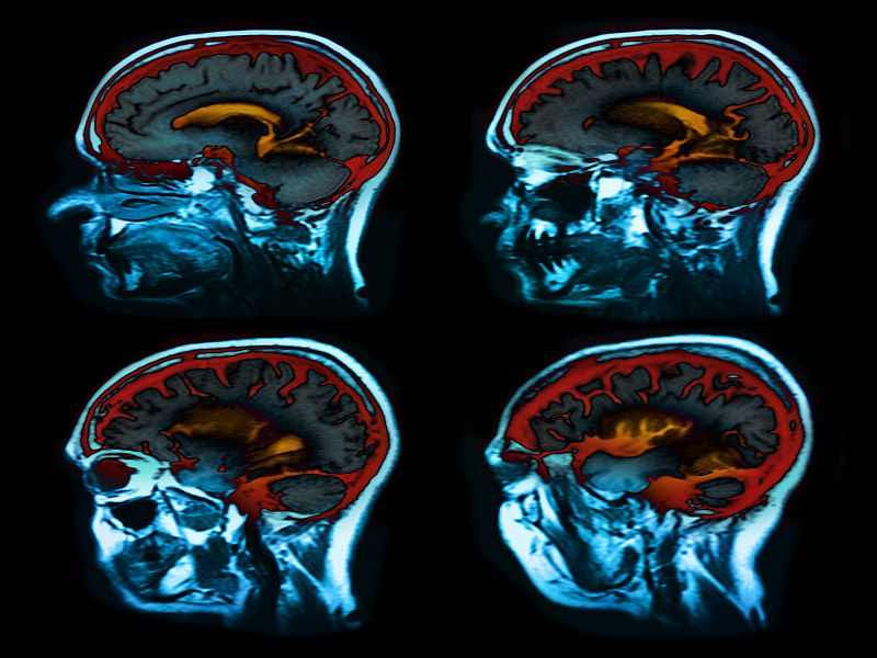 News Picture: Reduced Blood Flow to Back of Brain Raises Recurrent Stroke Risk: Study