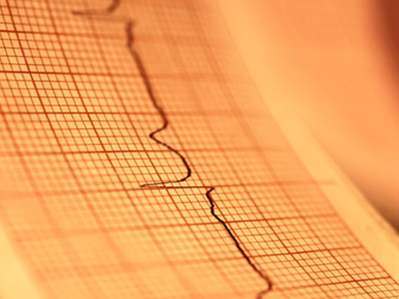 Men develop atrial fibrillation a decade earlier than women