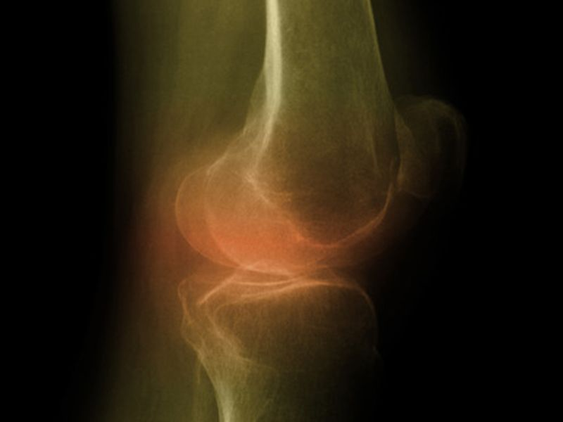 News Picture: Weight Loss May Spare Knee Cartilage, Study Finds