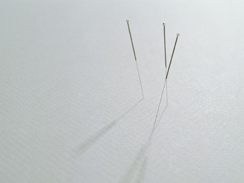 News Picture: Acupuncture May Help Ease Fibromyalgia Pain, Study Finds