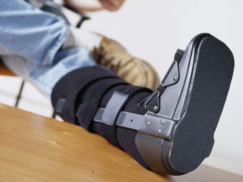How Doctors Decide to Treat a Ruptured Achilles