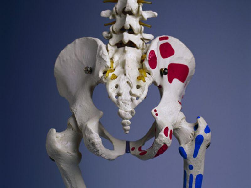 高齢者は股関節骨折後の自殺リスクが上昇