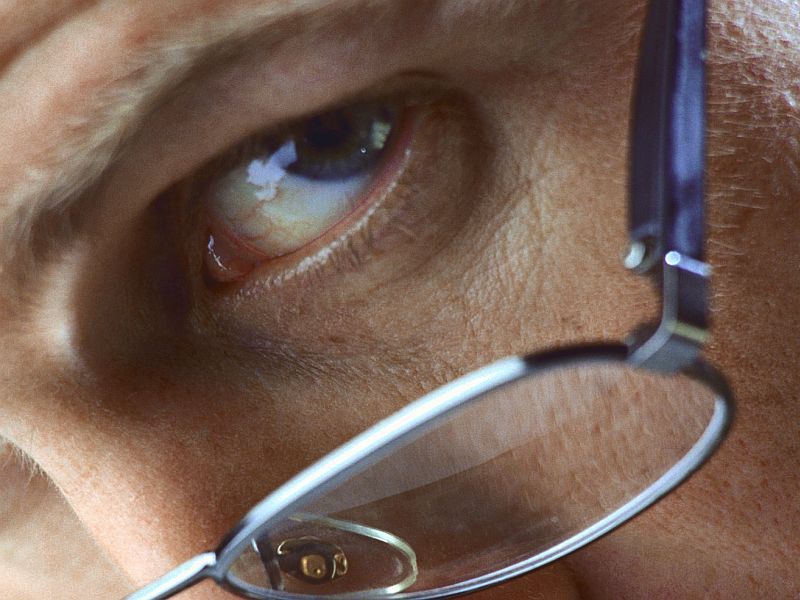 News Picture: Eye Exam Might Help Spot Poor Circulation in Legs