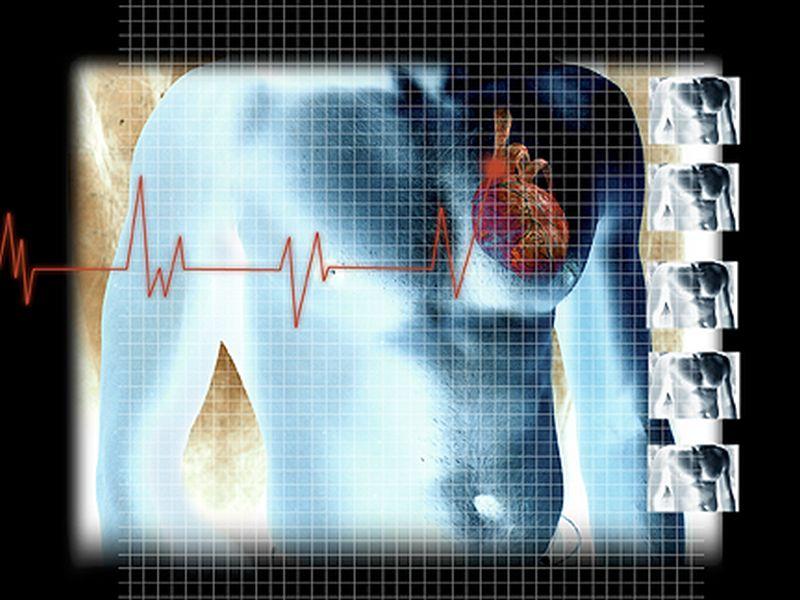 News Picture: Pump Implants May Rejuvenate Heart Failure Patients