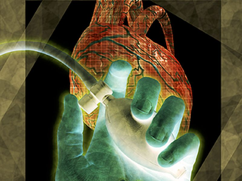 Could Hackers Target Heart Devices?