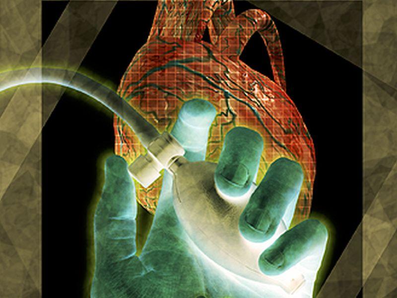 中年期の運動時血圧で後年の心疾患を予測できる可能性