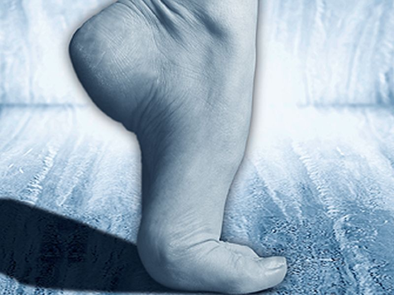 Are Pricey Orthotic Insoles Worth It for Heel Pain?