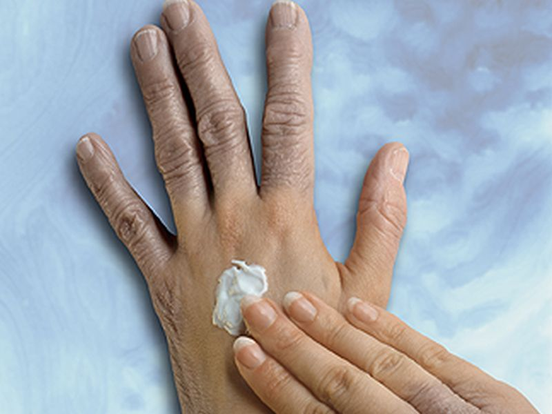 Skin Cream May Offer New Treatment Option for Psoriasis