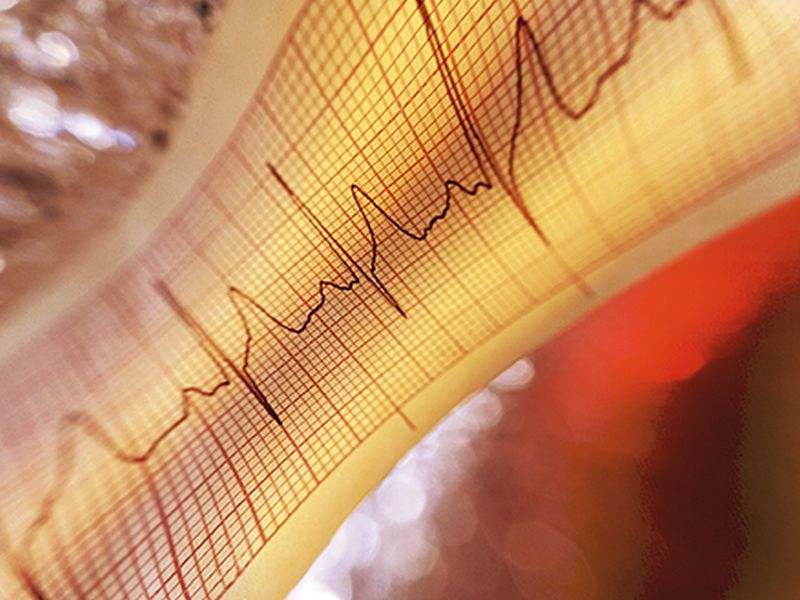 Weight Loss May Help Control Common Irregular Heartbeat