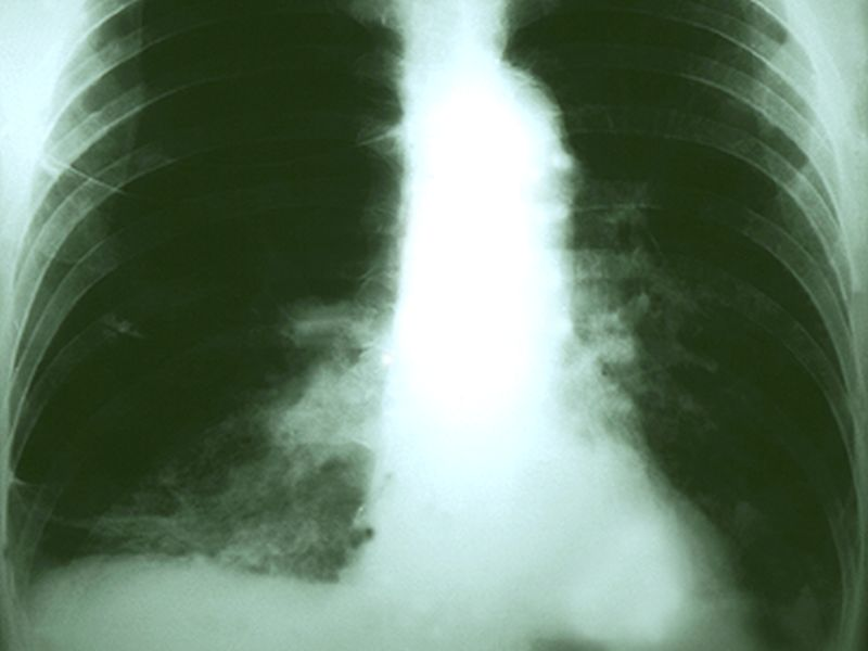 In Nonsmokers, COPD May Up Lung Cancer Risk