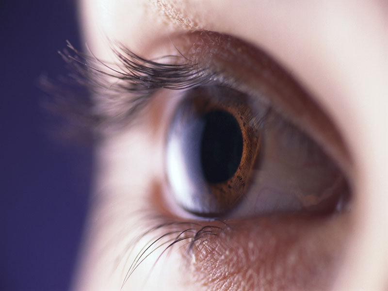 News Picture: Dry Eye and Migraines Might Be Linked: Study