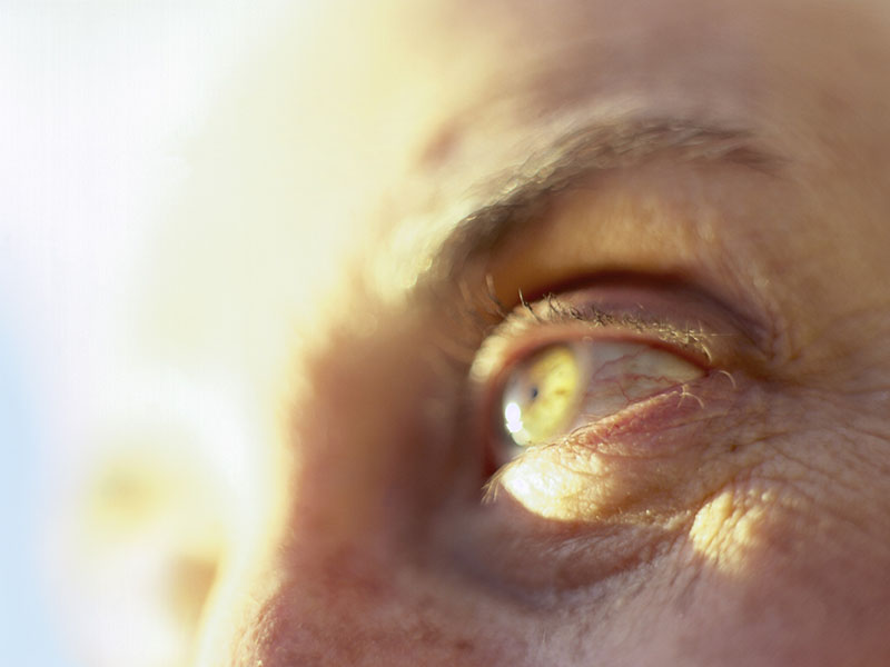 'Boomers' Doing Better at Avoiding Eye Disease of Aging