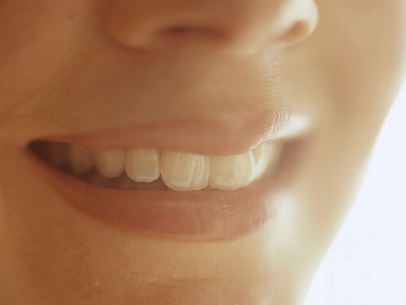 Do Your Pearly Whites Sometimes Cause You Pain?