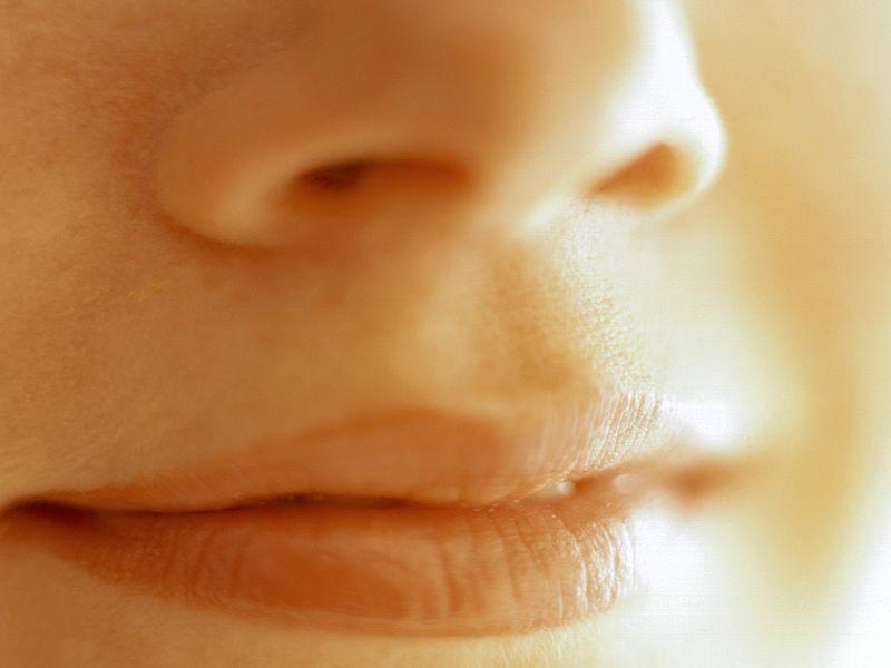 Monophasic HA Filler + Lidocaine Corrects Nasolabial Folds