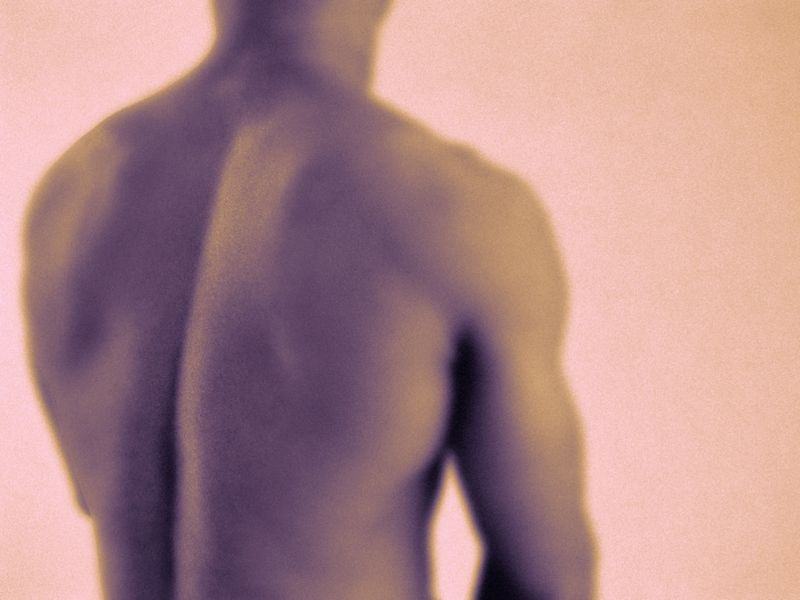 Steroid Shots Offer No Long-Term Relief for Low-Back Pain