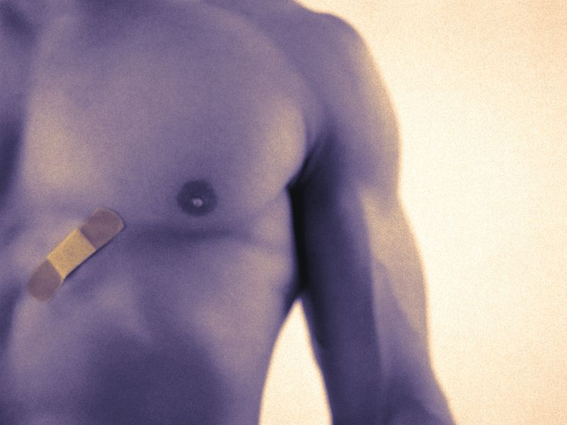 Many Male Breast Cancers Diagnosed Late, and Delays Can Be Lethal