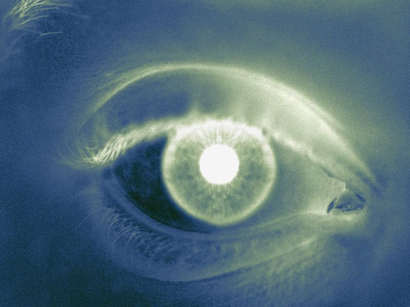 Statin Therapy Reduces Risk for Diabetic Retinopathy in T2DM