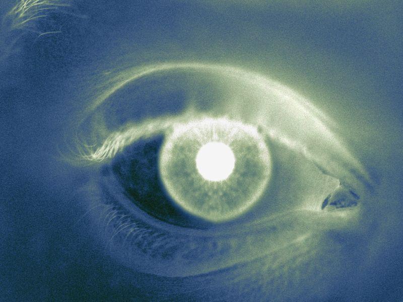 進行型多発性硬化症では再発寛解型多発性硬化症よりも網膜萎縮の進行が速い