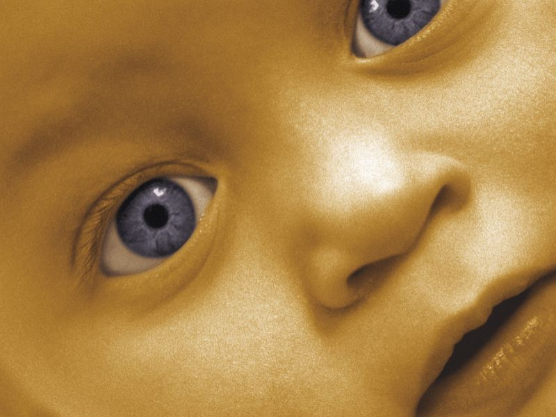 Low Postnatal Levels of Arachidonic Acid Linked to ROP