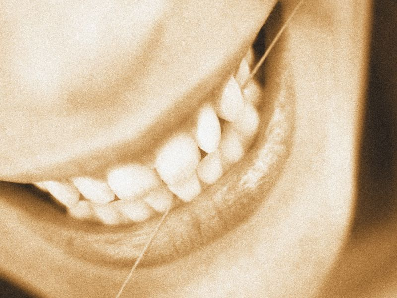 Gum Disease Tied to Yet Another Deadly Illness