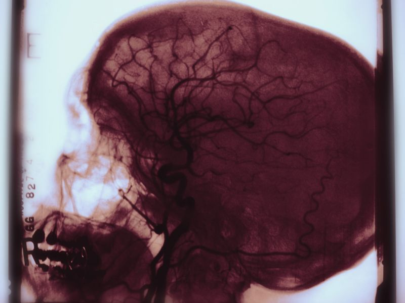 News Picture: Another Opioid Scourge: Infection-Related Strokes