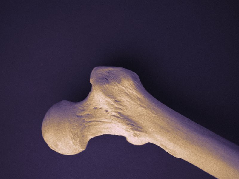 News Picture: Serious Illness Affects Bone Health